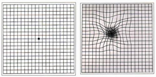 maculardegeneration grid