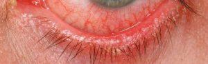 Inflamed eyelid skin