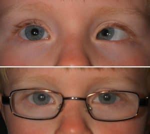 Incorrect eye alignment