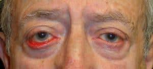Drooping of lower eyelid