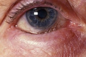 inward turning of either lower or upper eyelid