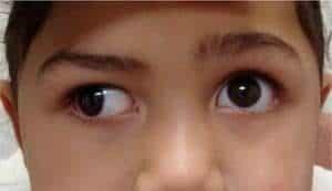 strabismus treatment