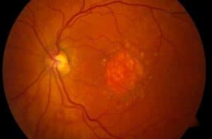 type of macular degeneration