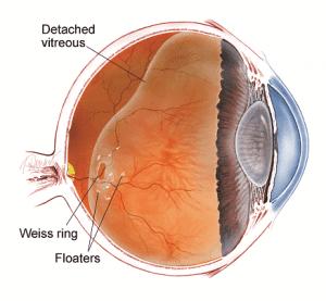 Floaters in the eye