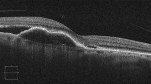 macular degeneration scan